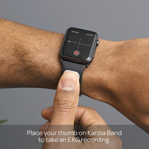 alivecor-kardia-band-for-apple-watch-2