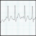 Basic ECG/EKG Interpretation of Common Arrhythmias