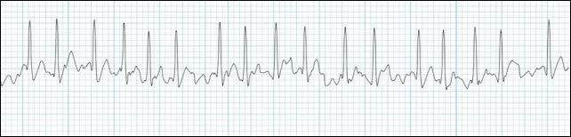 atrial-fibrillation-rhythm-strip