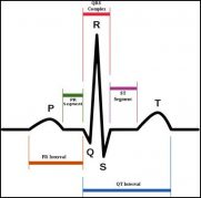 Understanding the Basics of an ECG/EKG