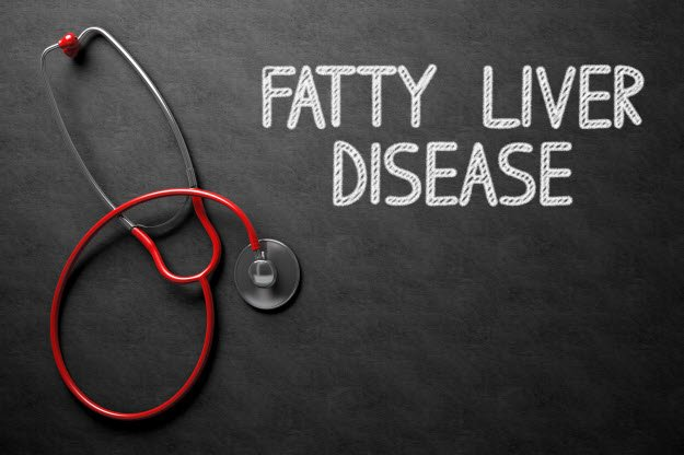 nonalcoholic-fatty-liver-disease
