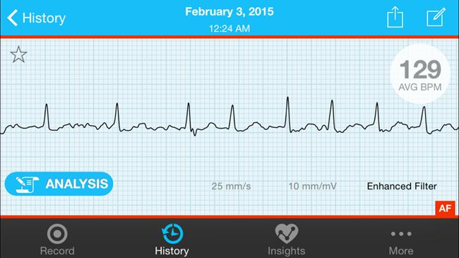 atrial fibrillation EKG