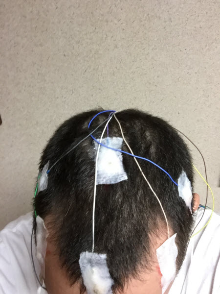 wires-on-head-2