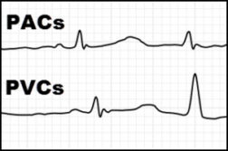 pac-and-pvc-ecg