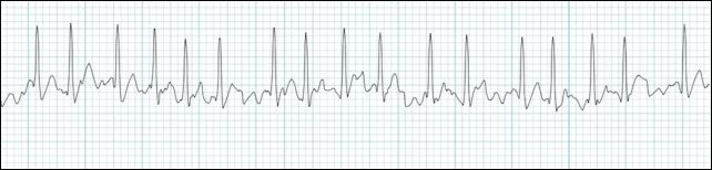 atrial-fibrillation-rhythm-strip