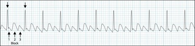 atrial-flutter-3-1-block-rhythm-strip