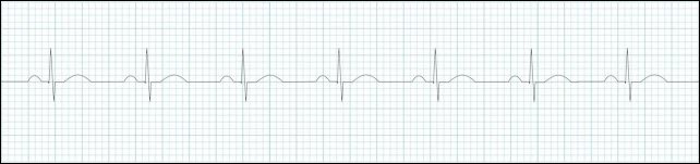 normal-sinus-rhythm-strip