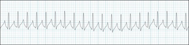 supraventricular-tachycardia-rhythm-strip