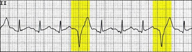 ventricular-quadrigeminy
