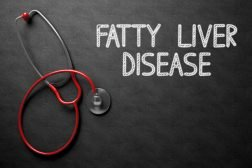 nonalcoholic-fatty-liver-disease
